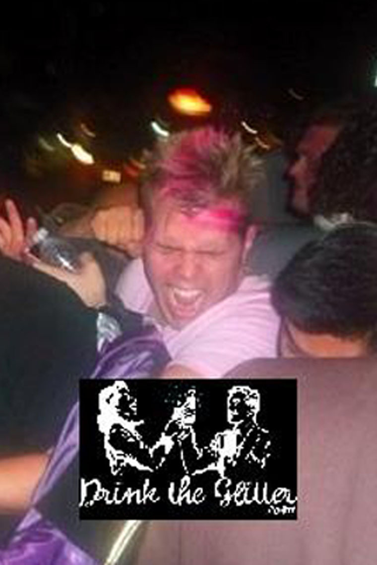 perez hilton punched. picture of perez hilton